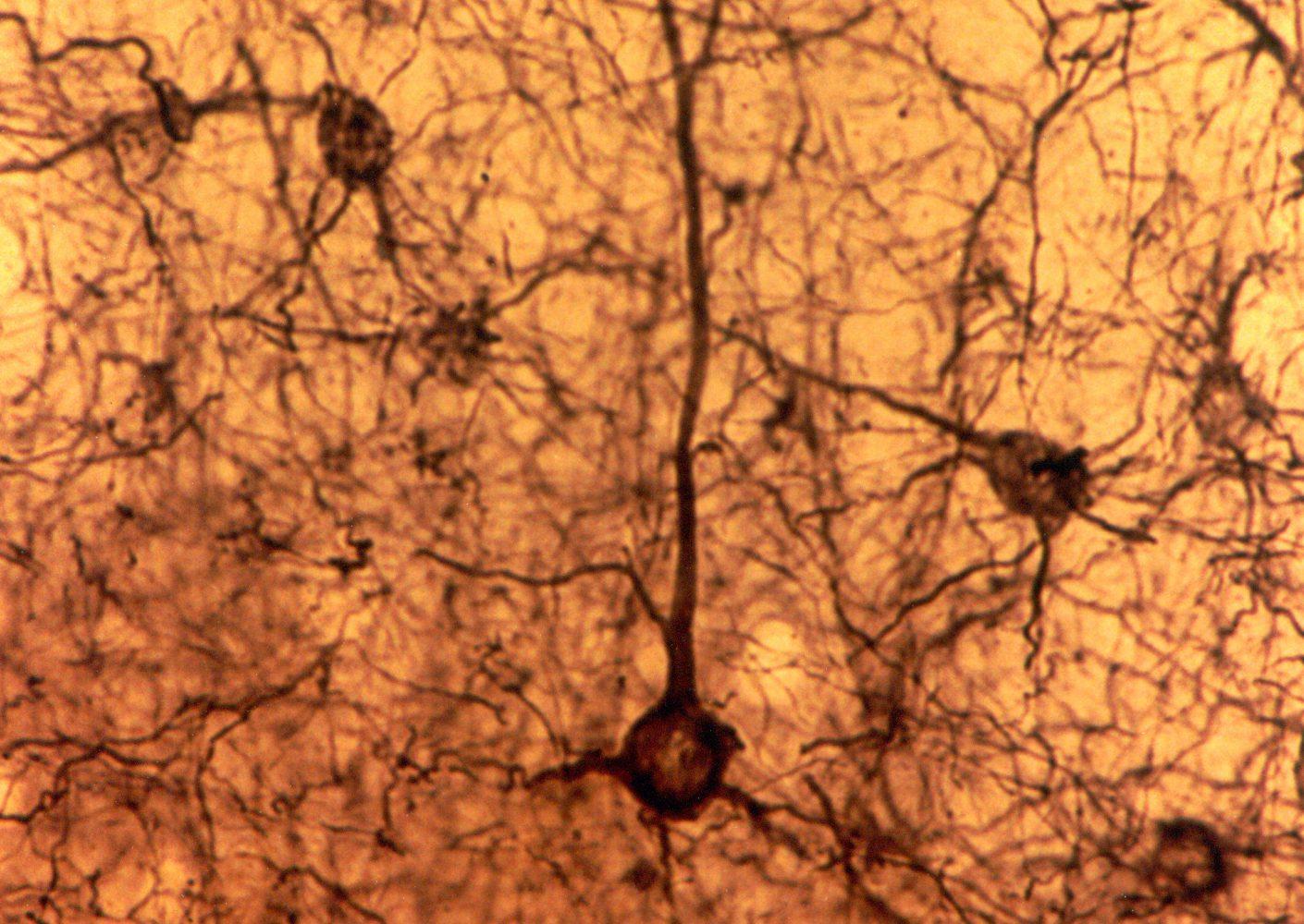La crisis y el desarrollo neurocognitivo